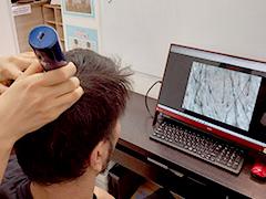 マイクロスコープによる頭皮チェック