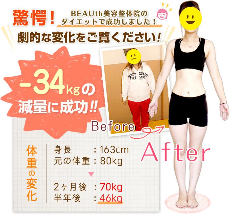 体質変化ダイエットで成功しました!劇的な変化をご覧ください!